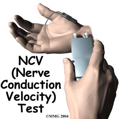 Diagram of Nerve Conduction Velocity (NCV) Test