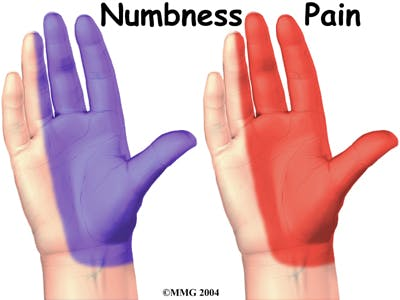 Numbness and Pain in Hand