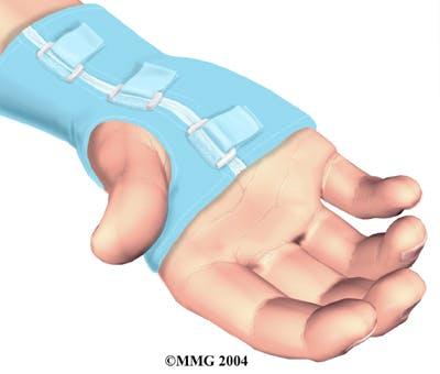 Diagram of a Wrist Brace