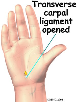 Diagram of Transverse Carpal Ligament Opened