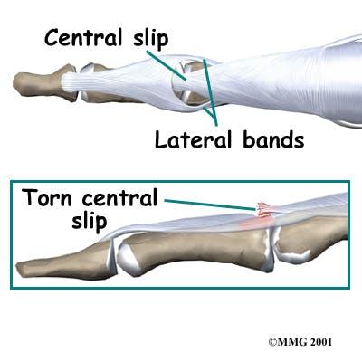 Diagram of Central Slip