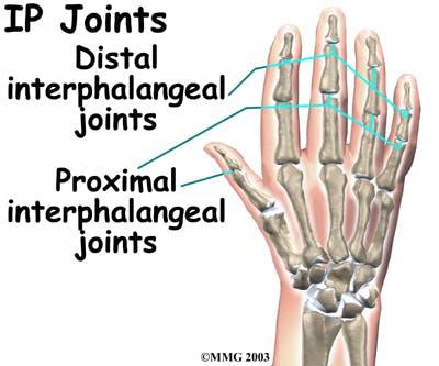 Diagram of interphalangeal (IP) joints