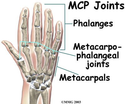Diagram of Metacarpophalangeal (MCP) Joints