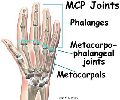 Diagram of Metacarpophalangeal (MCP) Joints