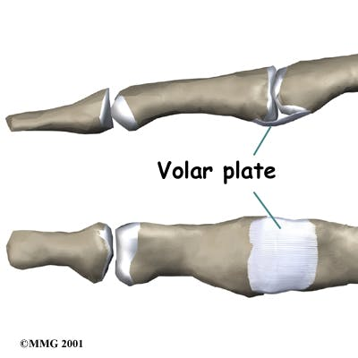 Diagram of Volar Plate