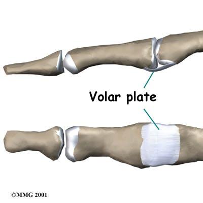 Diagram of Volar Plate