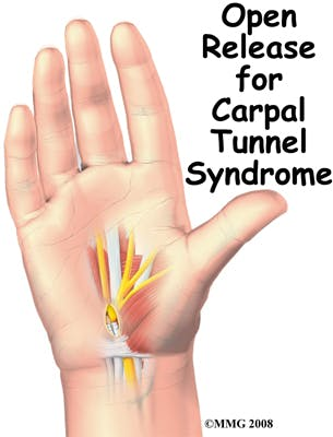Open Release for Carpal Tunnel Syndrome | CTS
