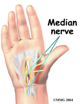 Diagram of Median Nerve Protected