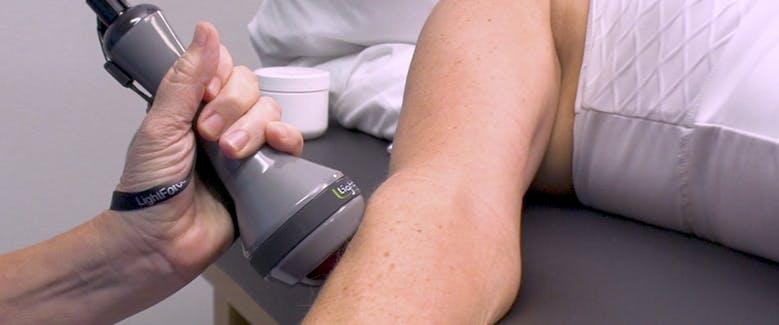 Laser Treatment on Upper Body