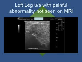 Left Leg with Painful Abnormalities not seen on MRI