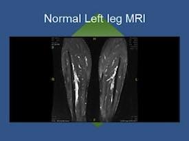 Normal Left Leg