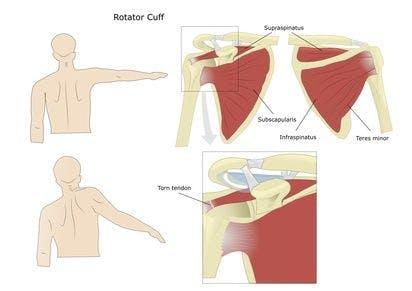 Rotator Cuff Therapy Portland