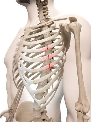 Fractured | Broken Rib Therapy & treatment Portland
