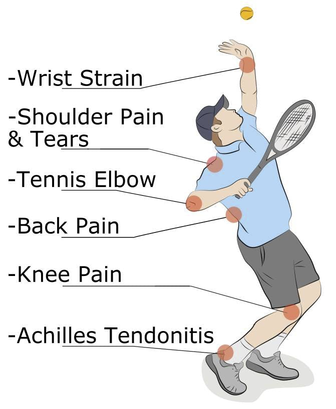 Tennis Injuries we treat at Stride Strong
