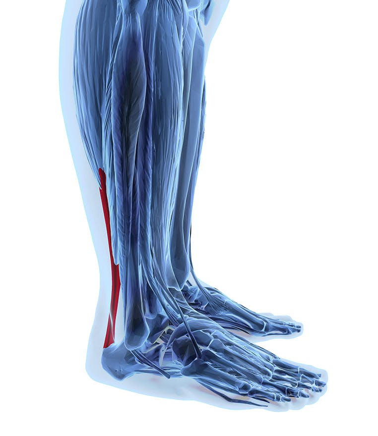 Pain from Achilles tendonitis