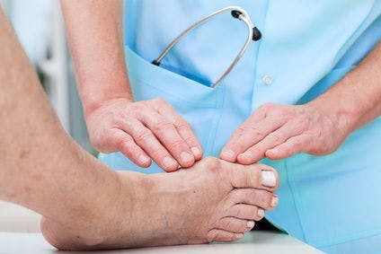 Bunion physical therapy