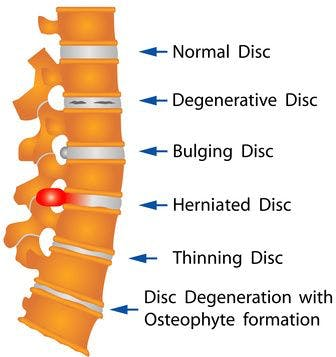 Diagram of disc injuries