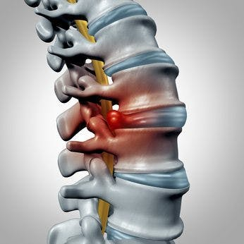 Disc Pain | Disc Herniation Physical Therapy