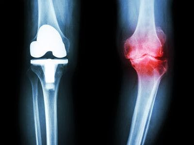 Knee replacement surgery physical therapy