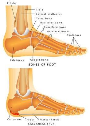 Skeletal diagram of a heel spur