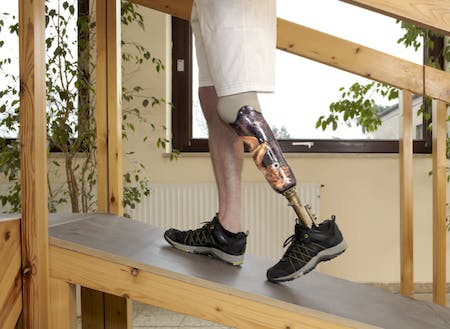Amputee Rehabilitation and Prosthetic Training |Tewsbury MA