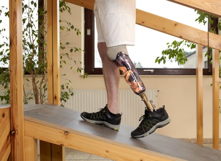Amputee Rehabilitation and Prosthetic Training |Tewsbury MA
