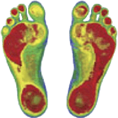 Custom-made Orthotics | Stay Active Rehabilitation | North York ON