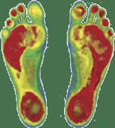Custom-made Orthotics | Physical Therapy Specialties | Pleasanton CA