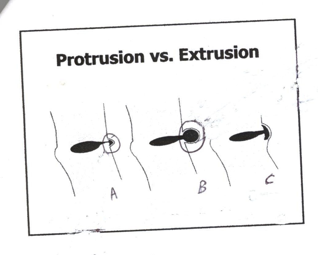 Protrusion vs. Extrusion
