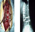 Open Back Surgery/ Lumbar Lateral Surgery