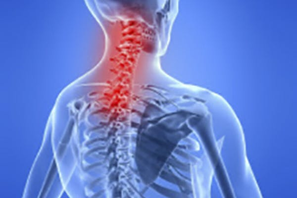 Rehab Solutions Physical Therapy | Auto Accidents | Motor Vehicle Accidents | MVA | Auto Injuries | Lyons IL