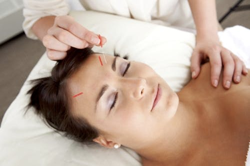 Physiotherapy and Acupuncture: The Perfect Pain Relief Pair