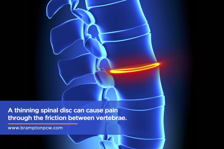 A thinning spinal disc can cause pain through the friction between vertebrae.