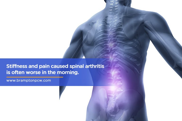 Stiffness-and-pain-caused-spinal-arthritis-is-often-worse-in-the-morning