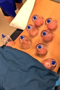 Physical Therapy Professionals | Cupping Therapy | Elkhart | Michiana
