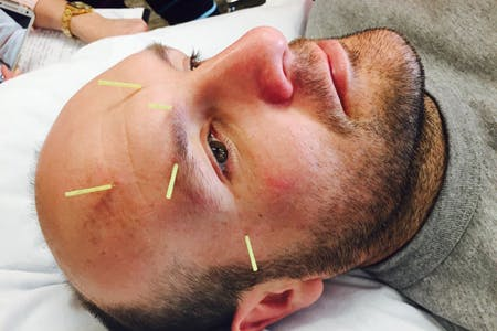 Physical Therapy Professionals | Dry Needling | Elkhart | Michiana