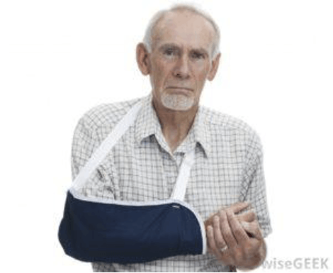Rehab for Total Shoulder Replacement (TSR)