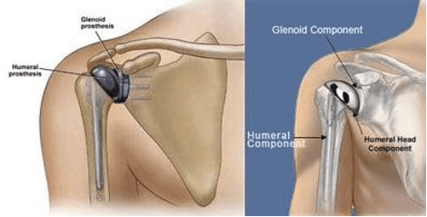 What is a Shoulder Replacement